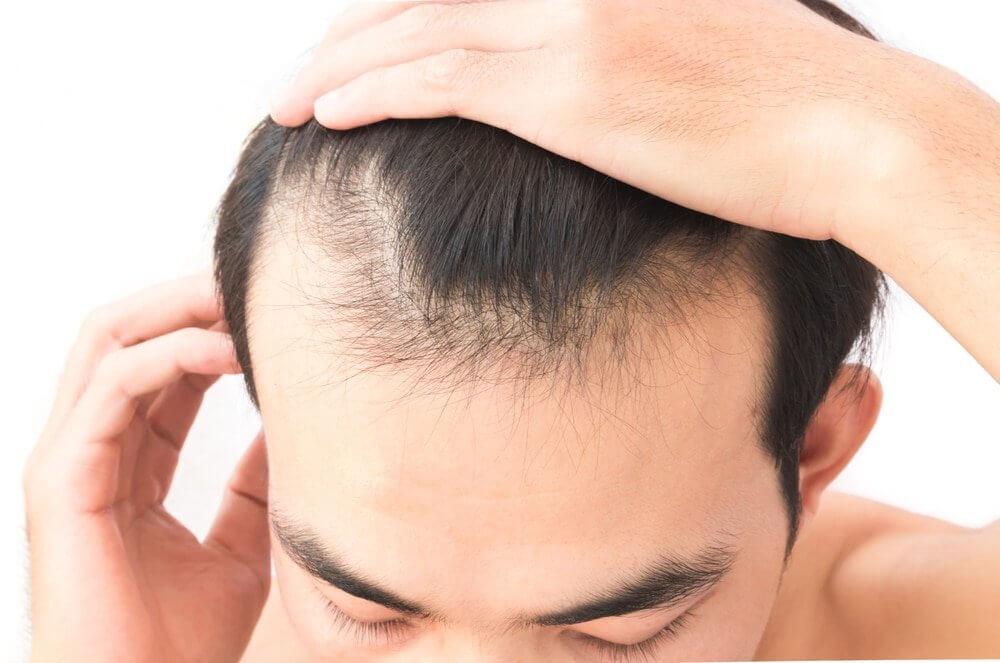 Perdita dei capelli quando iniziare a preoccuparsi