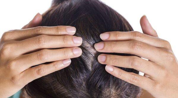 Trascurare il cuoio capelluto