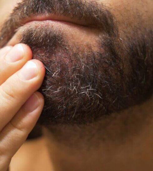 forfora nella barba qual è la causa